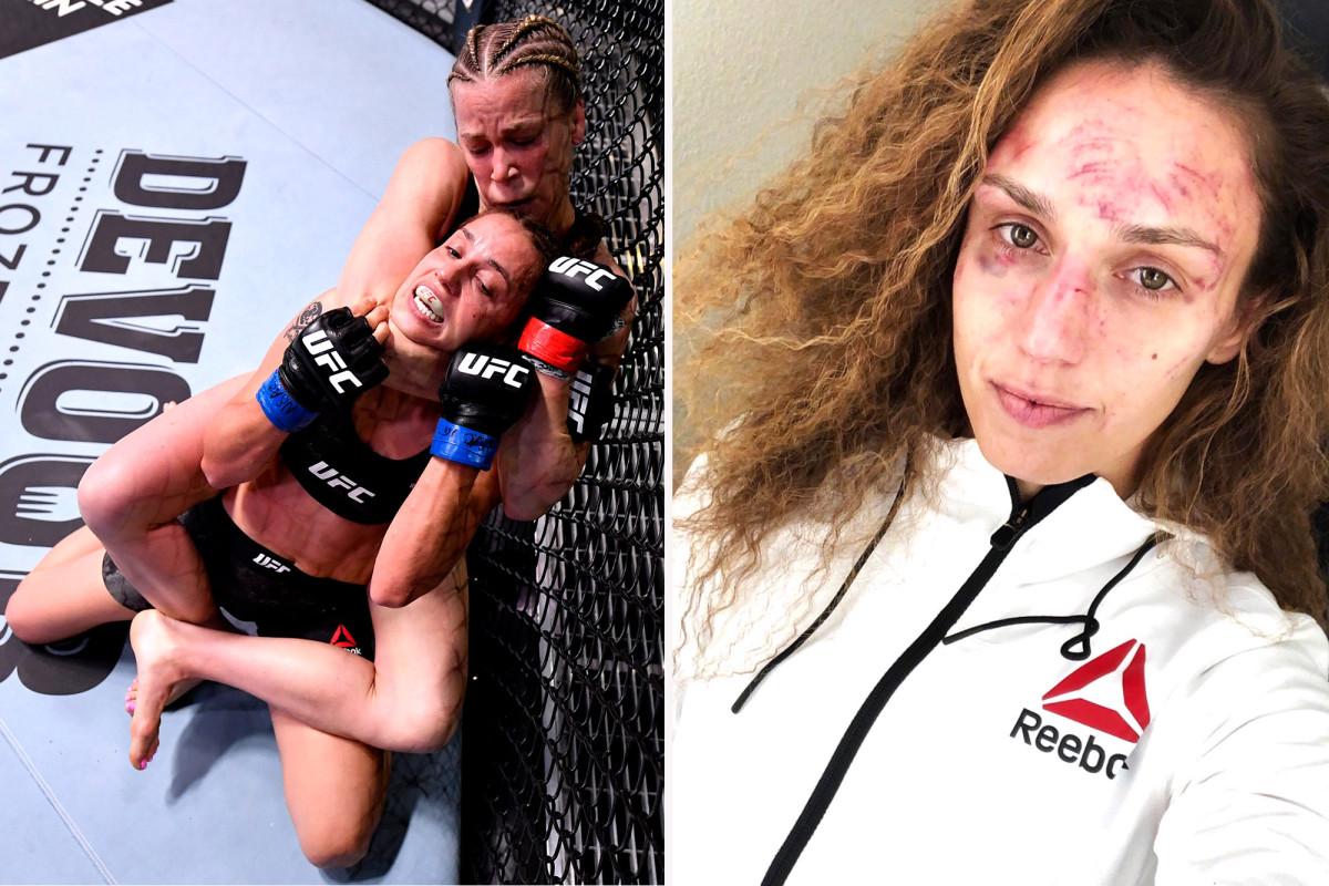 Antonina Shevchenko shows brutal damage from Katlyn Chookagian UFC fight
