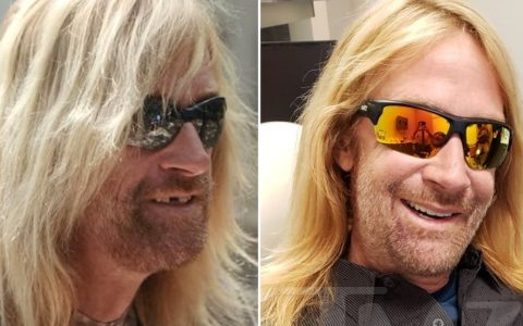'Tiger King' Zookeeper Erik Cowie Gets New Teeth