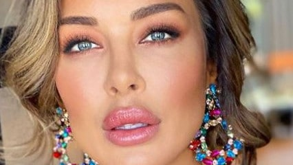 Former bachelor star Larina Fleur shows dramatic new lips
