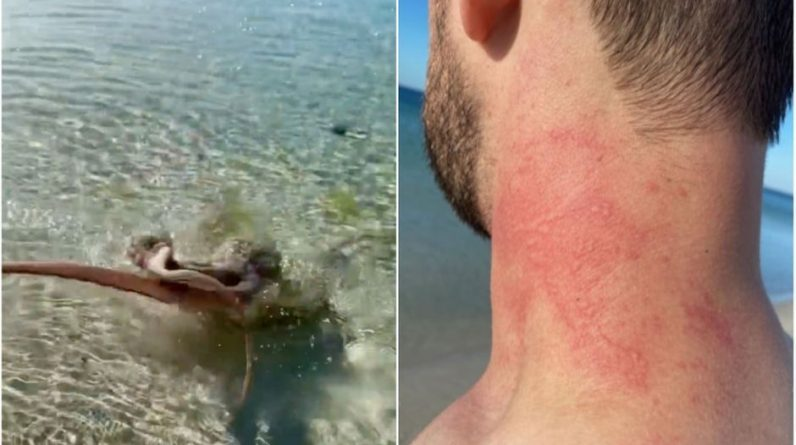 The man wiped out by the octopus in Australia